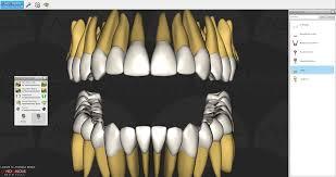 Anatomy Videos Free Download 3d Dental Anatomy 3d Anatomy Anomalousmedical Com