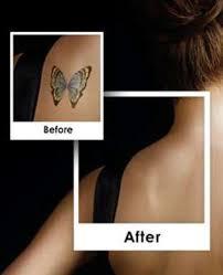 best laser tattoo removal north carolina picosure revlite winston