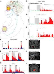 migraine multiple processes complex pathophysiology journal of