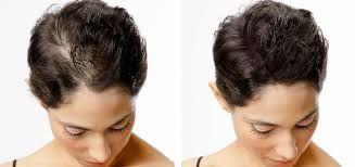 thinning hair in women on top of head scalp micropigmentation for women his hair clinic