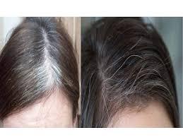 remove grey hair with potato potato for gray hair naturally