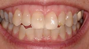 yellow teeth cosmetic dentistry dental health