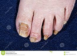 nails feet person affected by fungus stock photo image 68854841