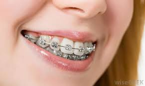 nickel free braces teeth alignment with braces dentist downers grove general