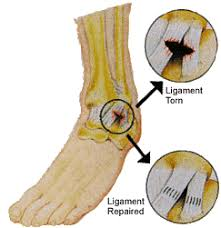 Ankle Ligament Tear Mri Ankle Sprains And Treatments Southeastern Podiatry Clinic