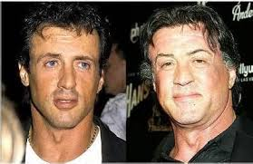 robert redford hairpiece sylvester stallone hair transplant before and after pictures