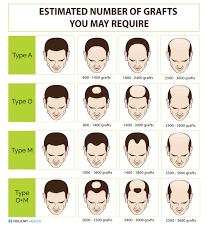 hair transplant america hair transplant cost international price comparison guide for