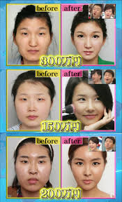 Asian Family Plastic Surgery Meme - to all white men please don t date and marry asian girls ugly