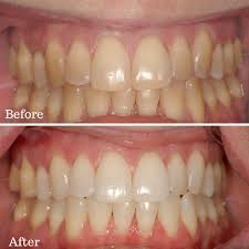 teeth whitening before and after http getfreecharcoaltoothpaste