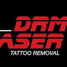 drm laser tattoo removal tattoo 356 bridge rd richmond