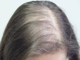 Injection In Scalp For Hair Growth Hair Restoration Services The Skin Skoop