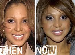 tamar braxton nose job before after toni braxton nose job before after before after pinterest