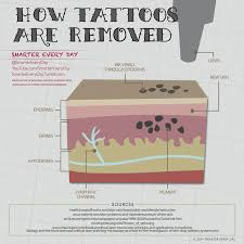 all you need to know about laser tattoo removal inkdoneright com