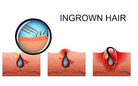 constant ingrown hairs on pubis butt ingrown hair causes shaving infections symptoms relief and