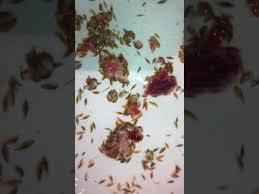 lice myths debunked fox 4 kansas city wdaf tv news weather