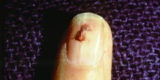 small nail beds