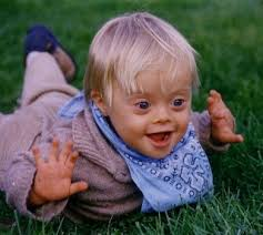 down syndrome picture
