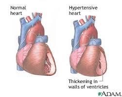 heart hypertension