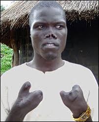 LRA victim