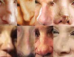 picture of noses