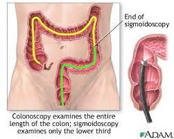 colonoscopy photo