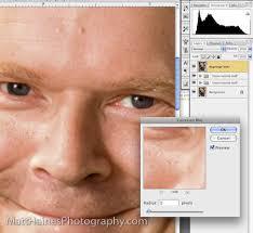deep pores