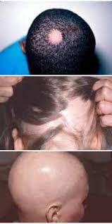 alopecia images
