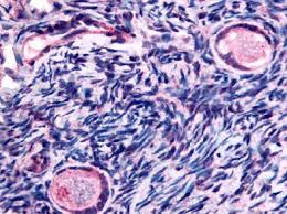 ovary tissue