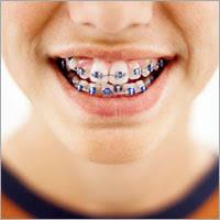 braces crooked teeth