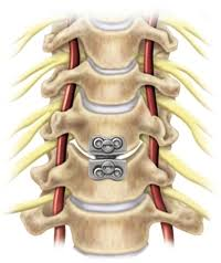 prestige cervical disc