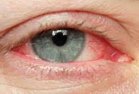 red eye medical