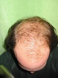 hair loss men