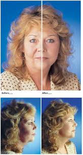face surgical