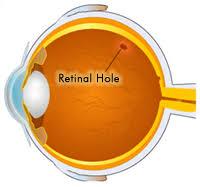 retinal holes