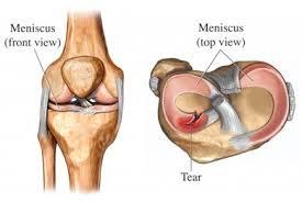 knee movements