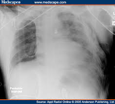 abnormal chest x ray