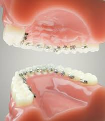 braces brackets