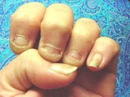 bite nails
