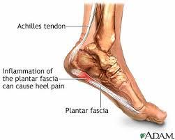 bottom foot pain
