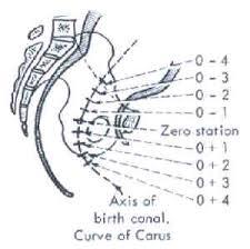 fetal station