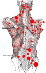 back pain trigger points