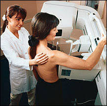 mammography pictures