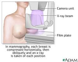 mammogram pictures