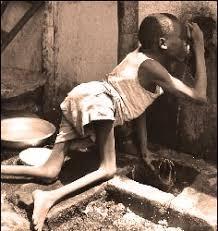children dying in africa