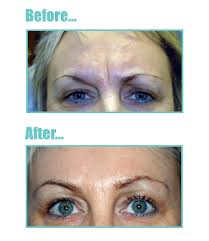 brow lines