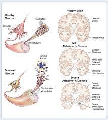 nerve cells brain