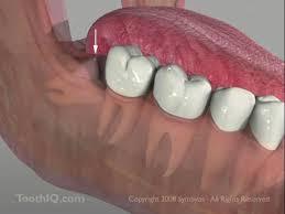impaction teeth