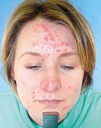 scars from pimples