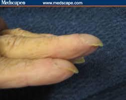 curved finger nails