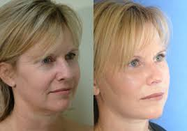 facelifts before and after